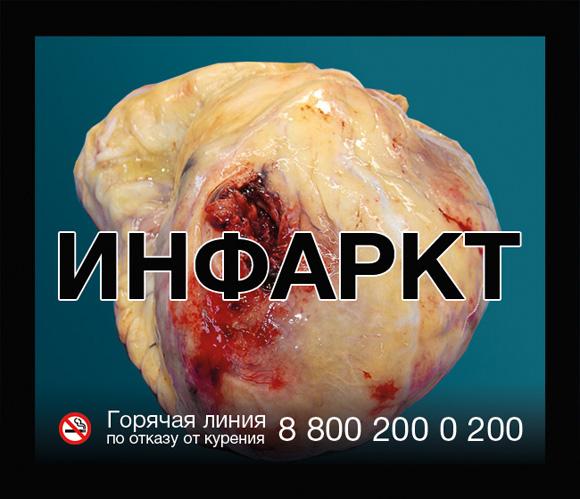 картинка инсульта на сигаретах спокойное