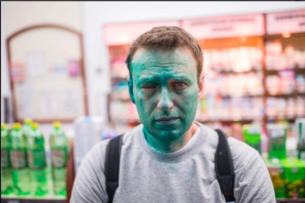 По факту нападения на Навального возбудили уголовное дело, пишут «Ведомости»
