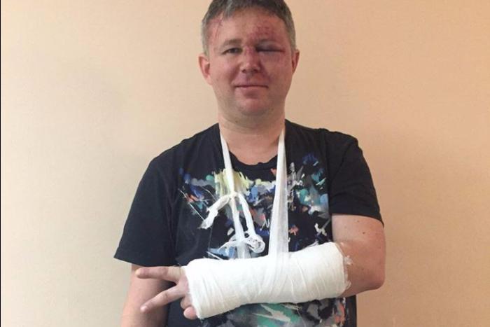 Правозащитника Динара Идрисова избили во время акции 28 января в Петербурге