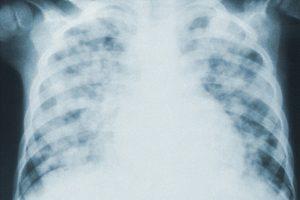 В мае 2020-го в Петербурге зафиксировали почти в 10 раз больше случаев пневмонии, чем год назад. Это произошло из-за пика эпидемии