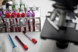 В России завершили клинические испытания первой вакцины от коронавируса. Массовую вакцинацию планируют на октябрь