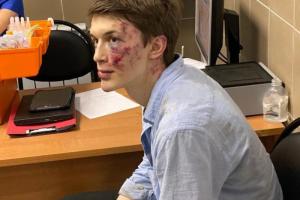 В Москве избили фигуранта «московского дела» Егора Жукова