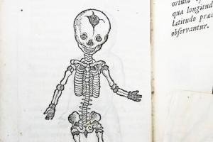 Это инстаграм медицинской библиотеки Йельского университета. Посмотрите, как врачи представляли себе органы человека 400 лет назад 👀