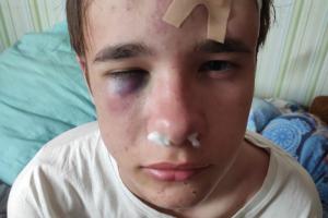 В Петербурге неизвестные избили подростка. Его приняли за гомосексуала из-за сережки в ухе