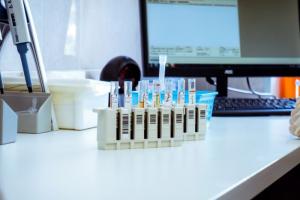 «Хеликс» выяснил, что у пожилых вырабатывается больше антител после COVID-19. А у женщин иммунный ответ растет до полугода — в отличие от мужчин